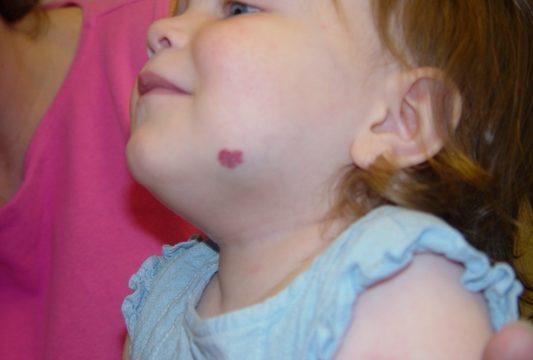 Baby birthmarks & rashes